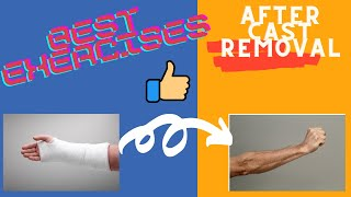 broken wrist exercises after taking off cast fingers physical therapy