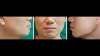 귀뒤사각턱(이지사각턱) 수술 개발-김인건 박사