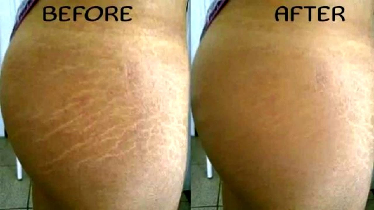 How To Get Rid Of Stretch Marks & Scars Fast!
