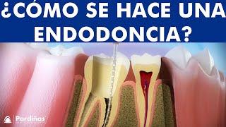 Endodoncia - Tratamiento para caries profunda ©