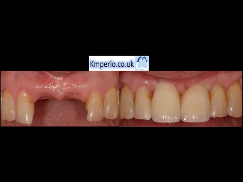 Dental Implant for  Upper Front Teeth-Start to Finish