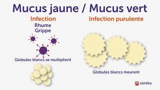 Ce que vous dit la couleur de votre mucus - Ooreka.fr