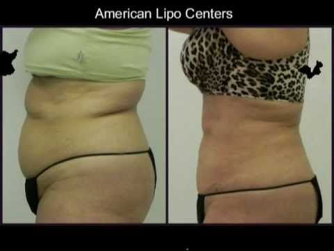 American Lipo Centers Before & After Photos