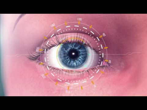Omega Ophthalmics' First Public Implantation of Its Omega Gemini Refractive Capsule