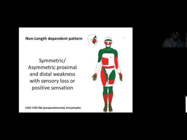 Approach to peripheral neuropathy Dr Ajith Sivadasan