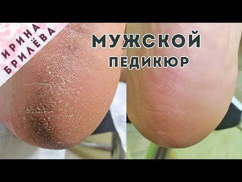 ПЕДИКЮР пошагово (МУЖСКОЙ) 🌸 Аппаратное УДАЛЕНИЕ ТРЕЩИН в условиях салона красоты
