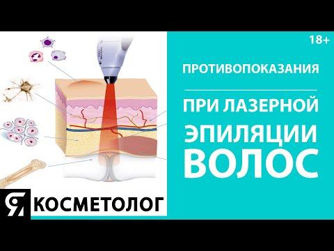 Противопоказания при лазерной эпиляции волос