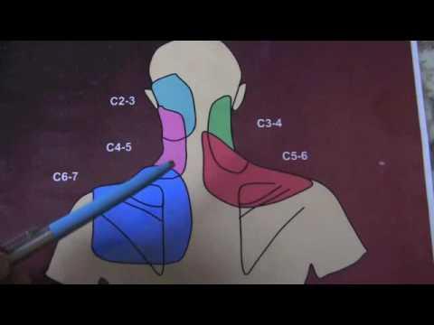 Cervical Medial Branch Blocks