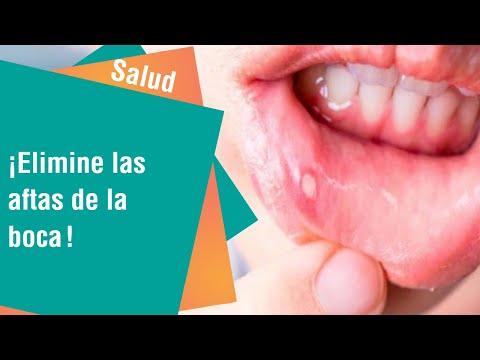 remedios caseros para heridas de la boca