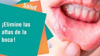 Salud | Remedios naturales contra las llagas o aftas en la boca