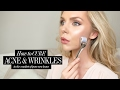 How to cure ACNE & WRINKLES at home! AD