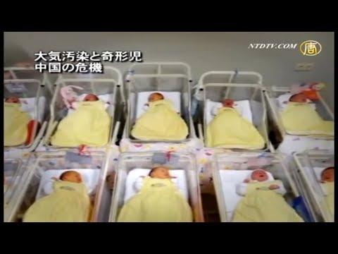 大気汚染と奇形児 中国の危機【禁聞】| ニュース | 新唐人|時事報道 | 中国情報