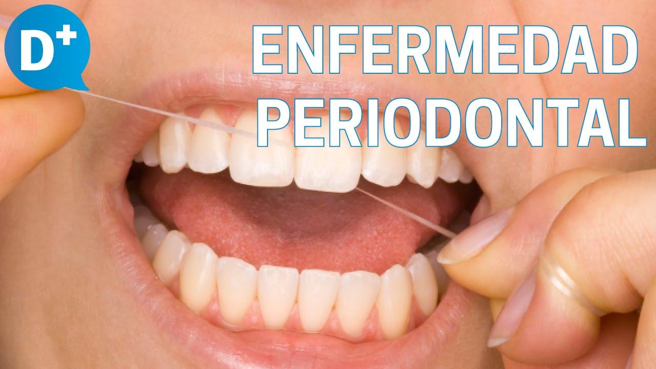 periodontitis agresiva patogenia de la diabetes