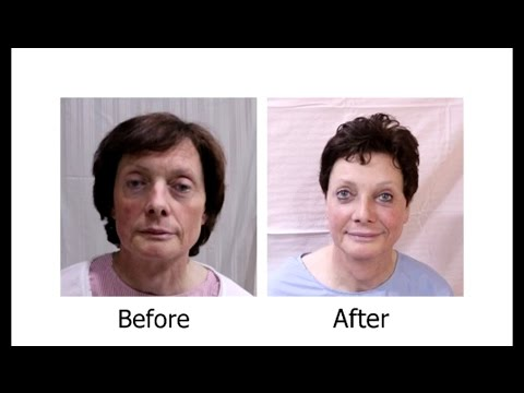 Forehead Feminization | Forehead Reconstruction | Male to Female Forehead Correction Surgery