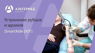Устранение рубцов и шрамов (SmartXide DOT)
