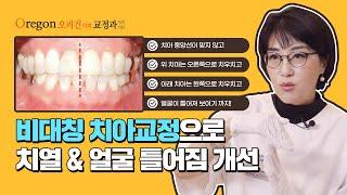 비대칭치열, 치아 교정으로 얼굴 틀어짐까지 개선된 사례…