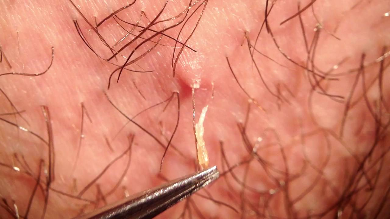 Hair Follicle Pulled Out Www Pixshark Com Images