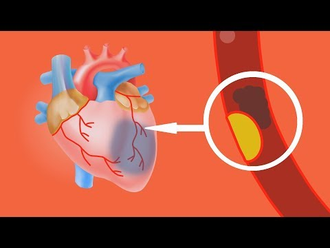 Простая Чистка Сосудов и Крови от Холестерина. Эффективно и без Лекарств