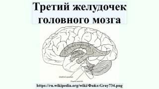 Третий желудочек головного мозга