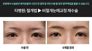 [전후사진] 소세지눈재수술 쌍꺼풀 낮추기
