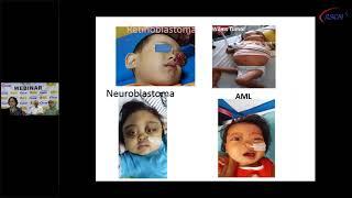 Wilms' tumor or nephroblastoma.