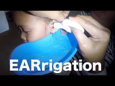 Removing Girl's Earwax by Ear Irrigation