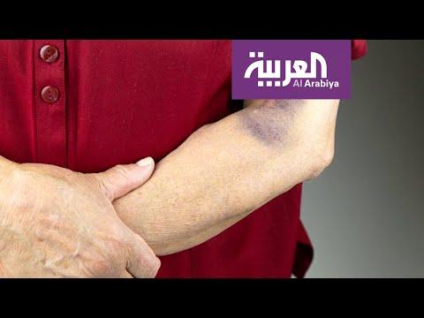 صباح العربية | ما سبب ظهور البقع الزرقاء تحت الجلد؟  - نشر قبل 8 ساعة