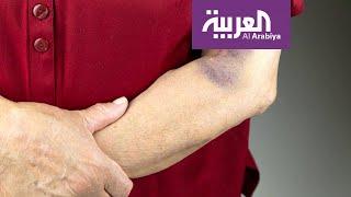 صباح العربية | ما سبب ظهور البقع الزرقاء تحت الجلد؟