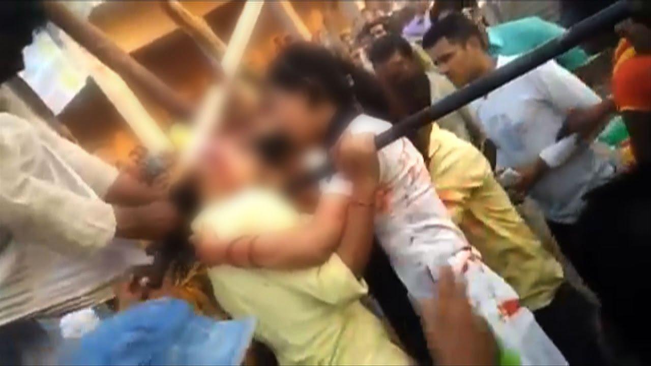 11 Gorgeous Tangled Gifs: On Cam: Girl Scalped While Taking Selfie Near Ferris Wheel