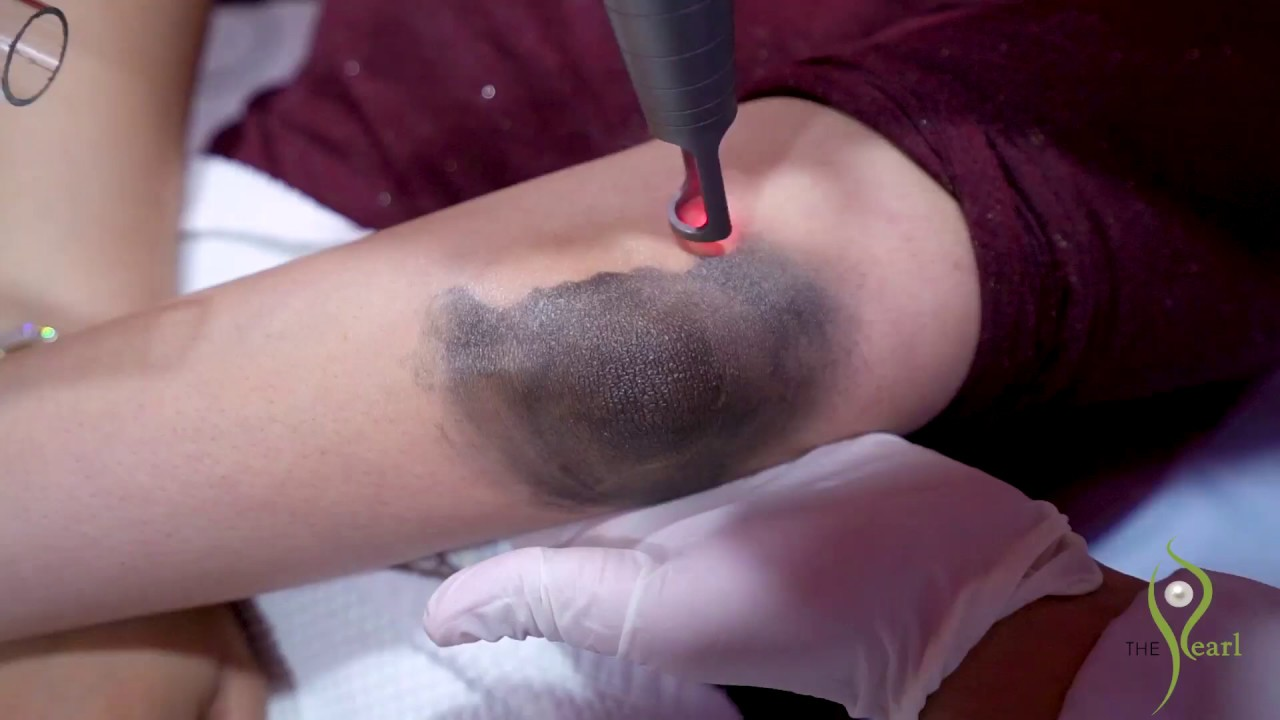 Hollywood Laser for Dark Elbow | Try it now at The Pearl Dermatology