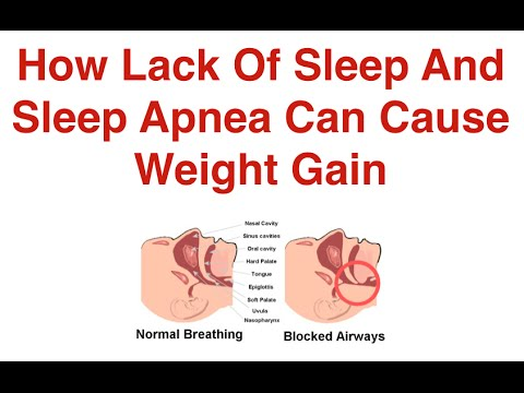 Image result for Sleep apnea causes more weight gain