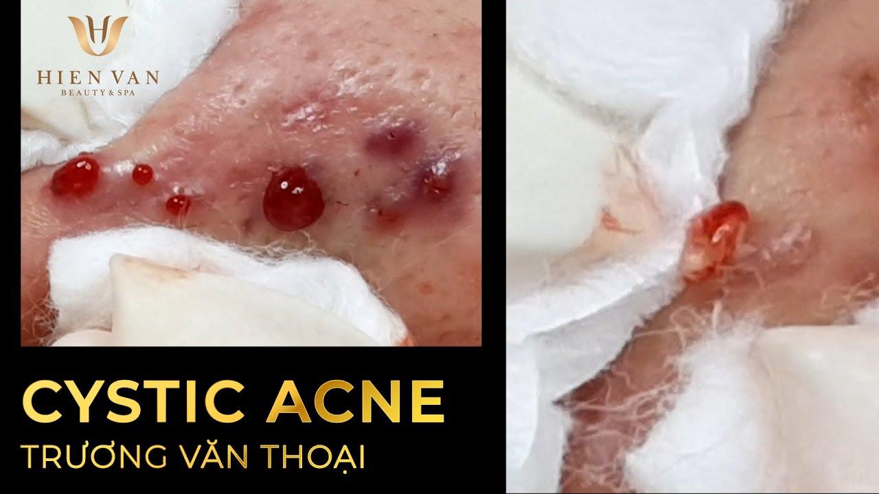 Mụn đầu đen! Điều trị mụn uy tín, hiệu quả nhất TPHCM tại Hiền Vân Spa I Trương Văn Thoại I Bài 434