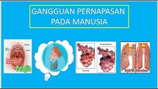 https://20.detik.com/e-flash/20200827-200827048/indra-bekti-beberkan-penyakit-efusi-pleura-yang-dial.