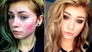 Топ 20 невероятных фото девушек до и после макияжа # 2