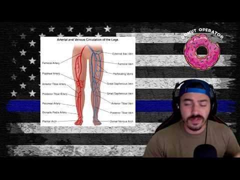 Why don't police shoot people in the legs?