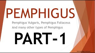 Pemphigus Vulgaris - Pathogenesis, Clinical Features, Histopathology and Treatment.