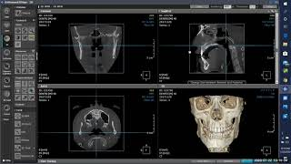 3D Airway Evaluation, HDXWILL's 7th webinar! Don't miss this one!