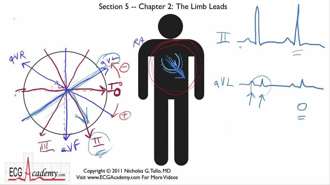 12 lead ekg limb diagram [ 1280 x 720 Pixel ]