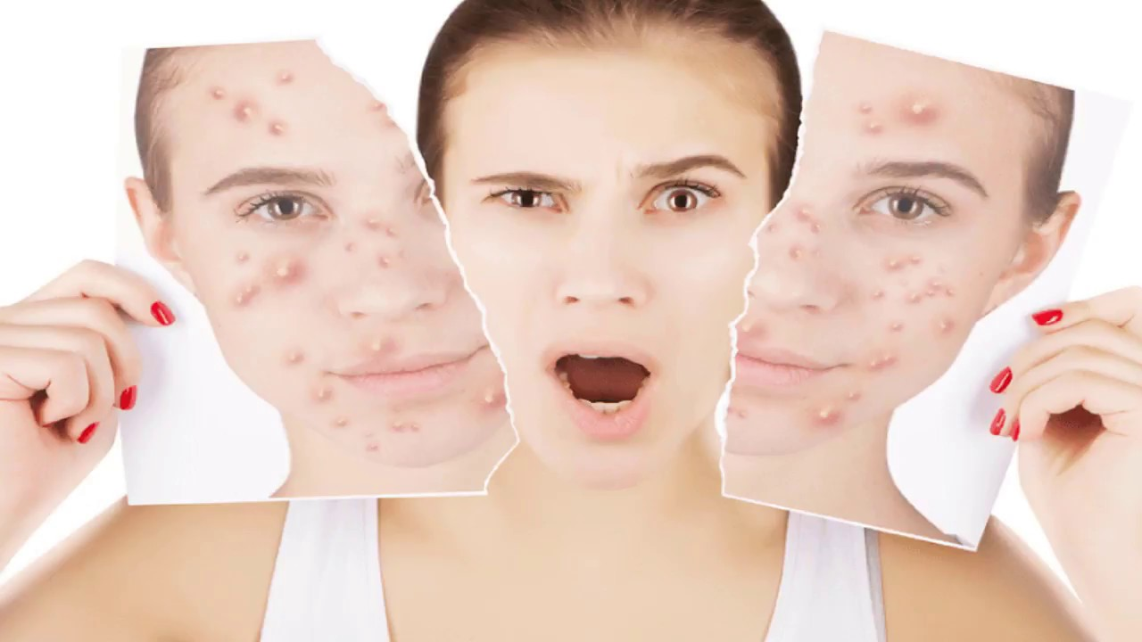 Get Rid Of Chickenpox Scars On Face Youtube