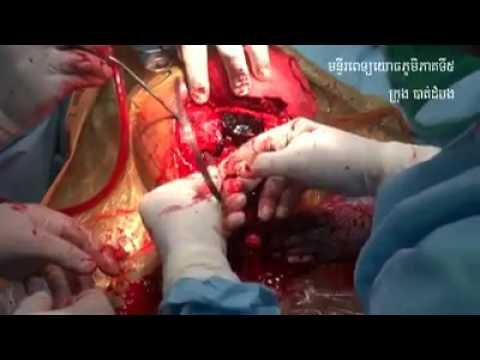 Brain Surgery-Hematoma And Skull Fracture