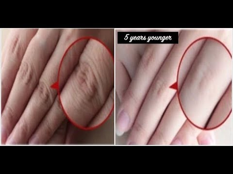 How to Make Your Hands Look 5 Years Younger Overnight! Wrinkle-free smooth fair hands