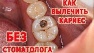 видео где вылечить зубы