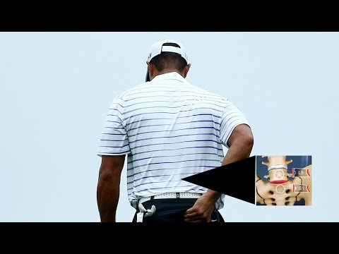 A look at Tiger Woods' L5/S1 spinal fusion back surgery