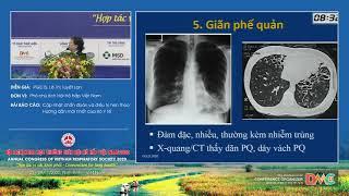 Cập nhật chẩn đoán và điều trị hen theo Hướng dẫn mới nhất của Bộ Y tế
