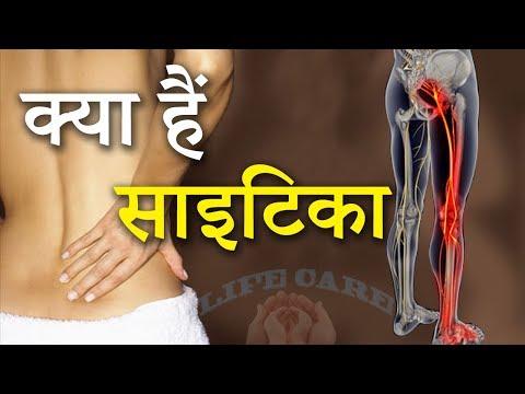 इस बीमारी के दर्द को अनदेखा न करे | साइटिका | Sciatica Pain In Hindi | Life Care