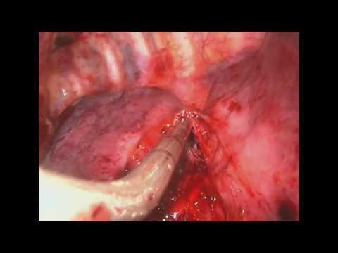 Формы туберкулёза лёгких, открытый и закрытый, первичный и