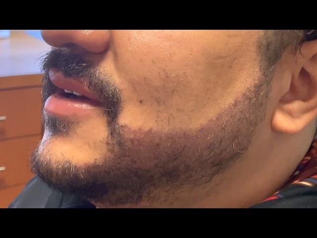 Dallas Beard Hair Transplant Testimonial One Day Out