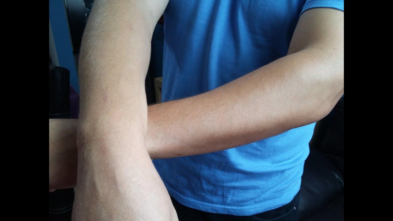 Como eliminar manchas de sol en los brazos