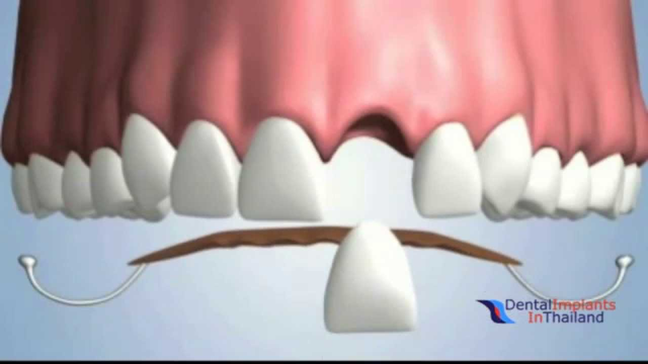 Tooth Replacement Options After Tooth Extraction