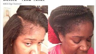 Jamaican Black Castor Oil EDGE TREATMENT  How To Safely ReGrow Your Edges  Hairline  BaldSpot